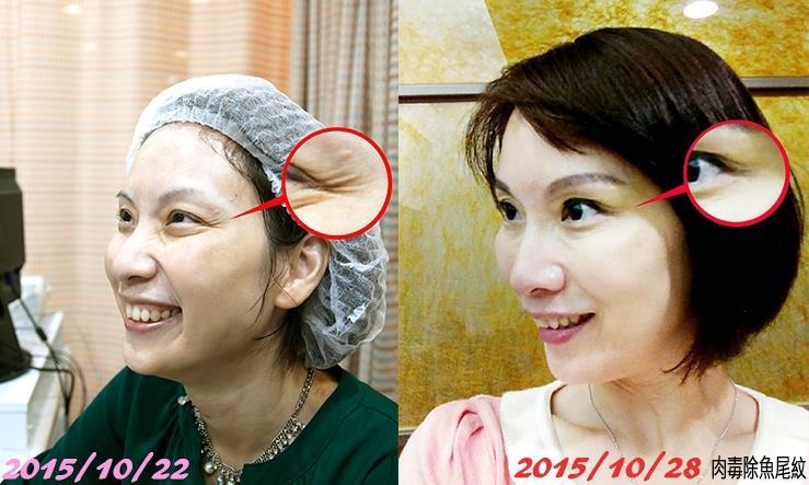 DR REBORN 7试做V面/鼻梁/下巴/苹果肌(4选1)美容疗程